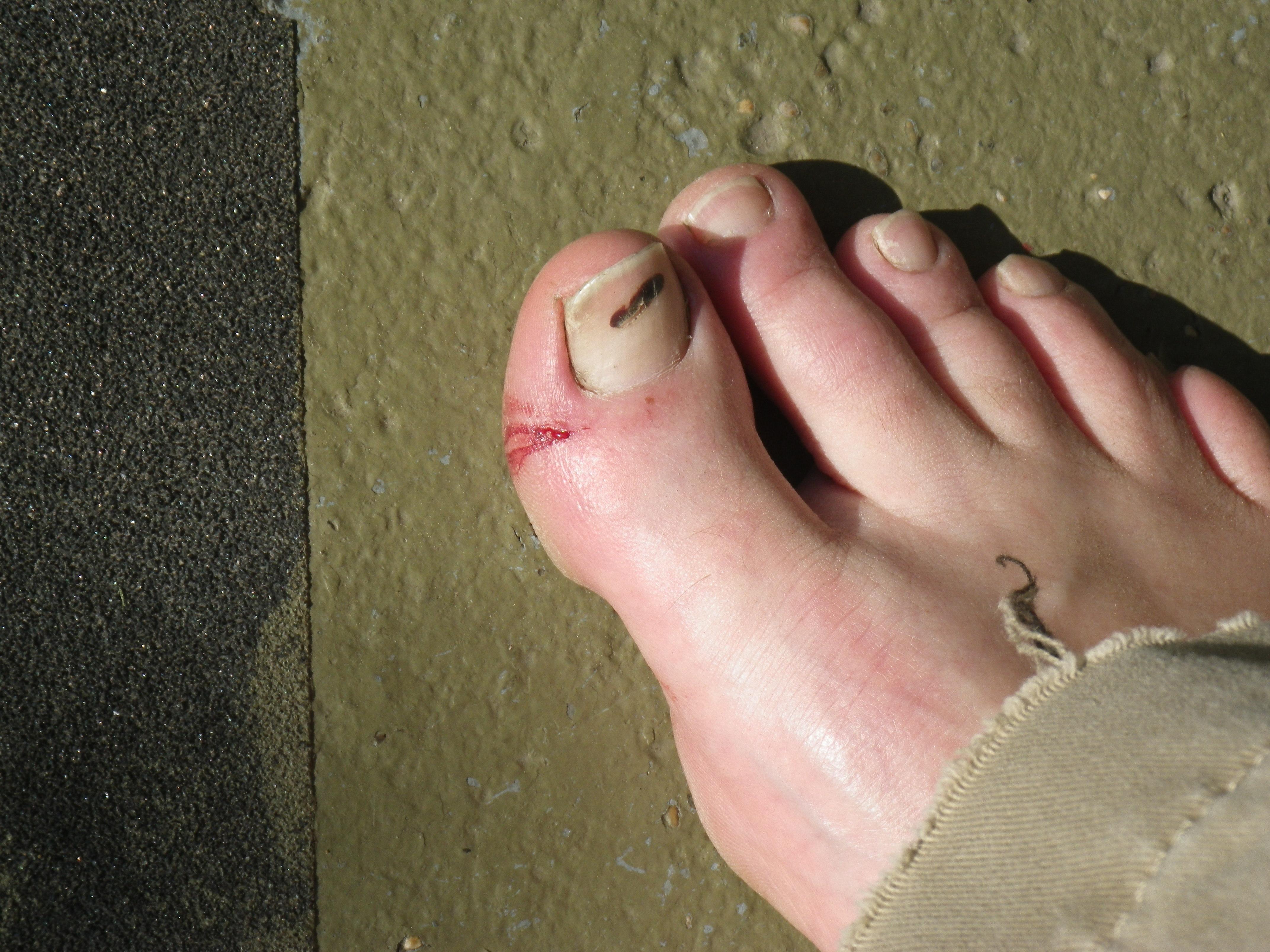 how to soak an cut toe